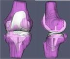 Изображение - Частичное протезирование коленного сустава Knee_3_145_1