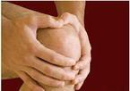 Изображение - Частичное протезирование коленного сустава Knee_7_145_2